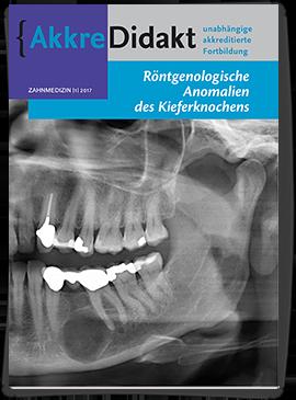 Röntgenologische Anomalien des Kieferknochens