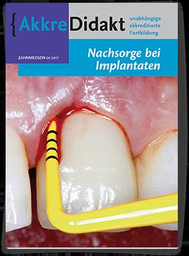 Nachsorge bei Implantaten