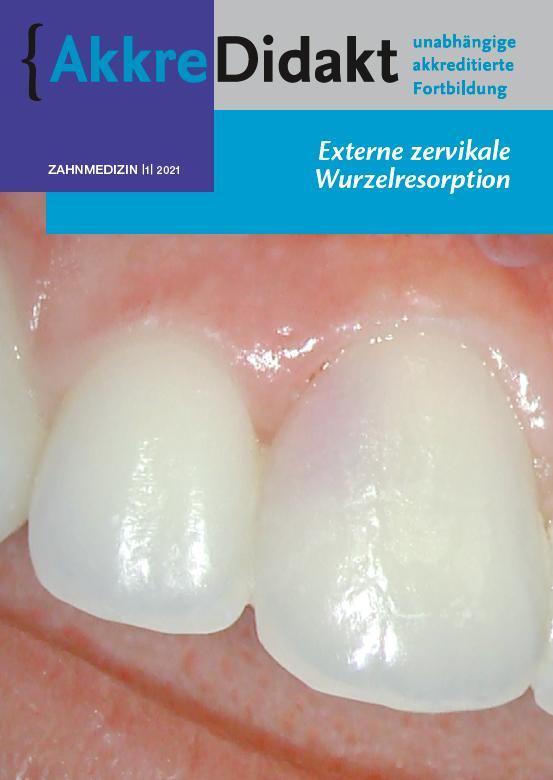 Externe zervikale Wurzelresorption