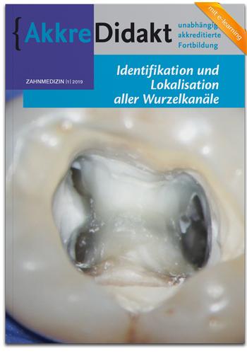 Identifikation und Lokalisation aller Wurzelkanäle