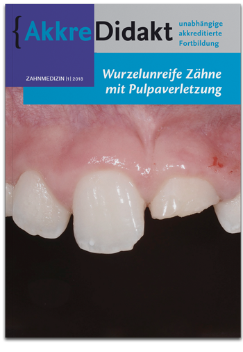 Wurzelunreife Zähne mit Pulpaverletzung