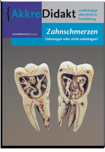 Zahnschmerzen - Odontogen oder nicht-odontogen