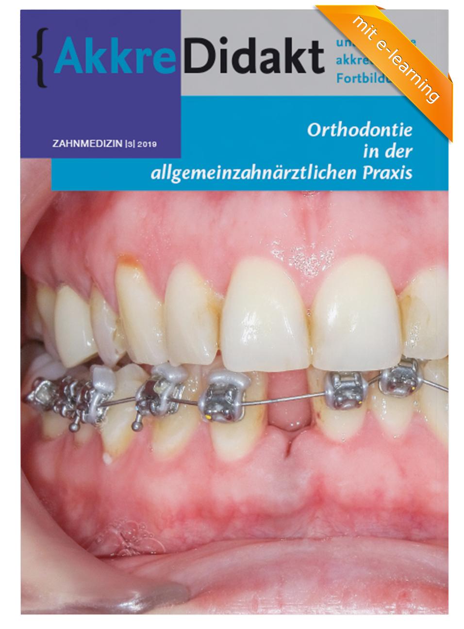 Orthodontie in der allgemeinzahnärztlichen Praxis