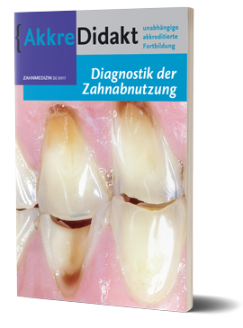 Diagnostik der Zahnabnutzung
